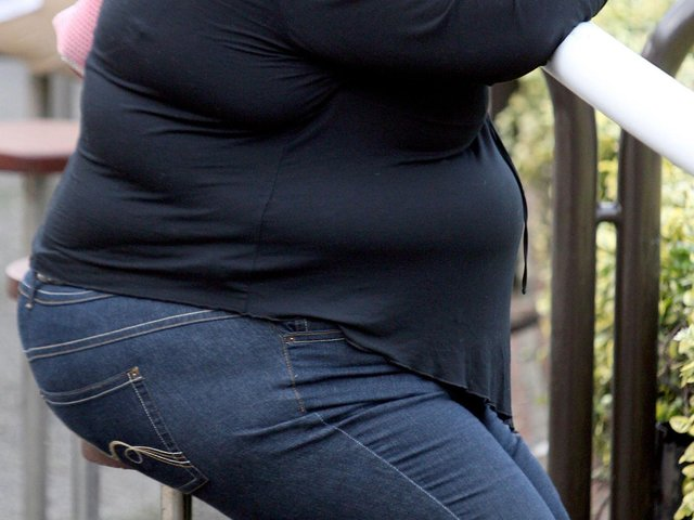 More people admitted to hospital due to obesity in Lancashire